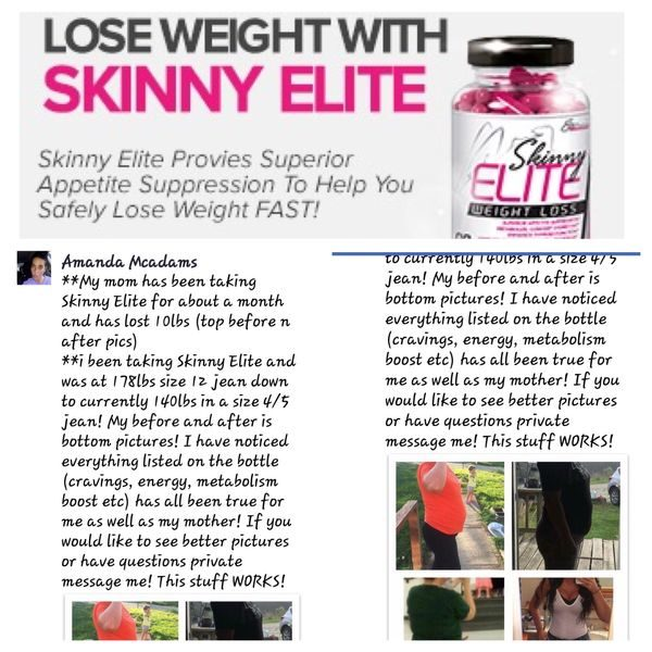 SKINNY ELITE WEIGHT LOSS